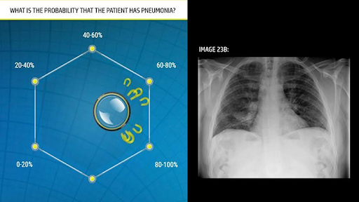 Cancer diagnostics - Blog S-PRO